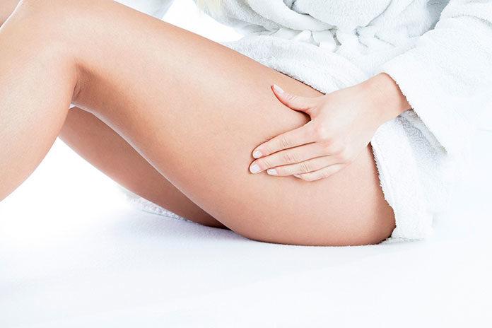 Pajączki na nogach - jak się ich pozbyć?