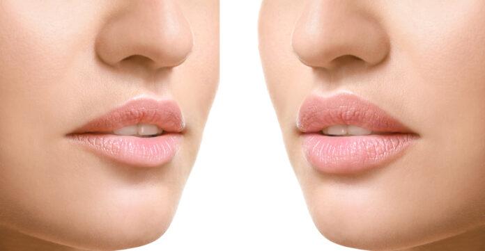 Powiększanie i modelowanie ust. Nadaj ustom nowy kształt!